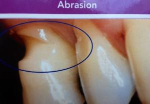 abrasion dentaire