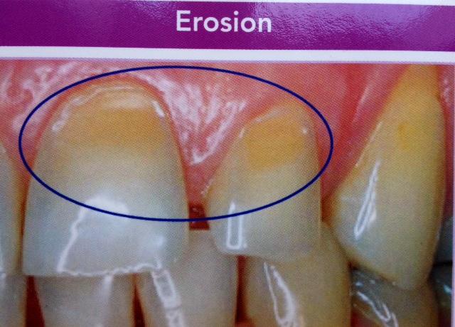 L rosion dentaire l abrasion dentaire dentiste - Cabinet dentaire boulogne billancourt ...